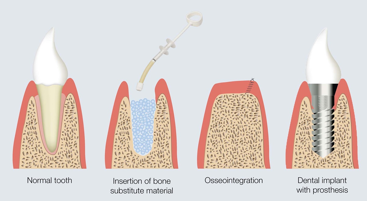 Process steps for inserting dental implants.